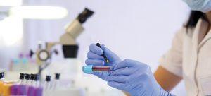 Conditions pour effectuer un test respiratoire à l'urée pour la recherche d'Helicobacter pylori